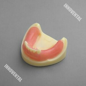 Dental Model 2009 01 Lower Jaw Implant Practice Model With Gingiva