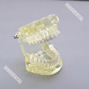 Dental Model 3002 01 Orthodontic Model With Ceramic Brackets