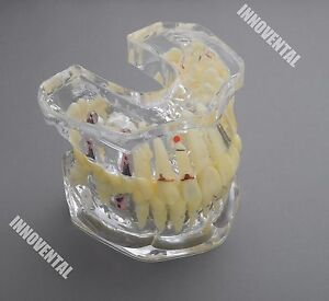 Dental Model 6004 01 Enlarged Implant And Restoration Study Model