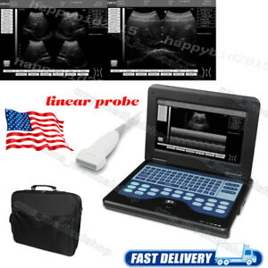 Digital Notebook B ultrasound Diagnostic System hospital Care 7 5m Linear Probe