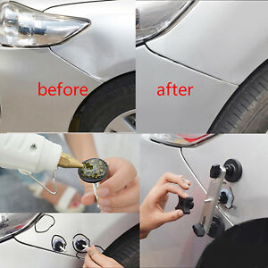 Auto Body Paintless Dent Repair Puller Bridge Pdr Tools Hail Damage Removal Kits
