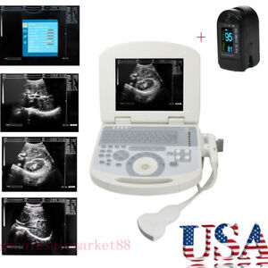 Usa 3d Full Digital Laptop Medical Ultrasound Scanner Convex Probe Oximeter Ce
