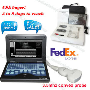 Good Sale Digital Portable Ultrasound Scanner Ultrasonic Machine convex Probe