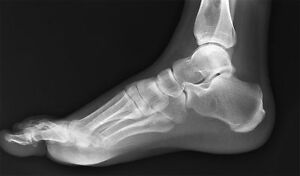 Podiatry Digital X ray Image Capture Kodak Poc Cr System With Computer Software