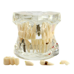Usa Transparent Dental Disease Teeth Model Removable Tooth Teaching Model Tools