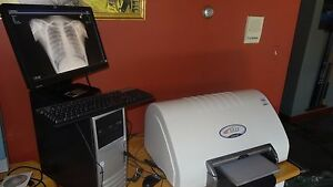 Chiropractic Digital Xray Cr Reader With Warranty Nucca Software X ray