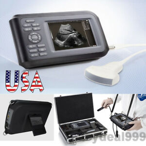 Ce Lcd Portable Handheld Digital Ultrasound Scanner Machine Convex Probe Battery