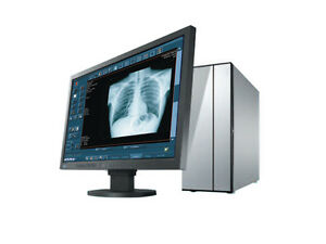 X ray Upgrade Dr Digital Radiology Retrofit Cassette Size Tethered Xray Dr