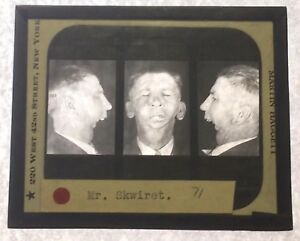 Antique Medical Glass Slide Plastic Surgery 1930s Martin Haggett New York City C