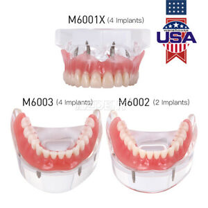 Dental Implant Teeth Model Demo Overdenture Restoration W 2 4 Implants Upp Low