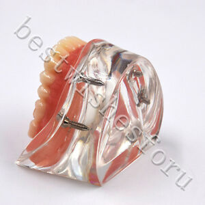 Dental Study Teeth Model 6002 02 Overdenture Inferior 4 Implants Demo Model