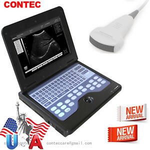 Us Digital B ultrasound Diagnostic System Ultrasound Scanner 3 5mhz Convex Probe