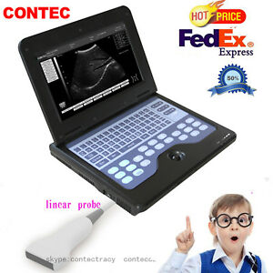 B ultrasound Diagnostic System Cms600p2 Portable Notebook 7 5mhz Linear Probe us