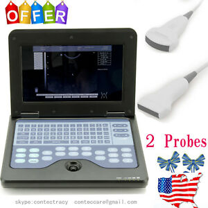 B ultrasound Diagnostic System Cms600p2 Portable Notebook Convex linear Probe us