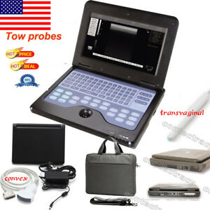Portable Full Digital Laptop Ultrasound Scanner Machine Convex transvaginal usa