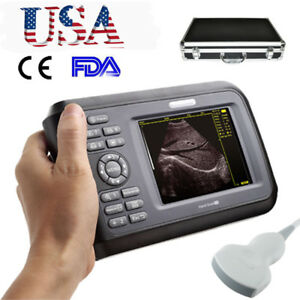 5 5 Mini Digital Ultrasound Scanner Machine Portable For Human Convex Probe