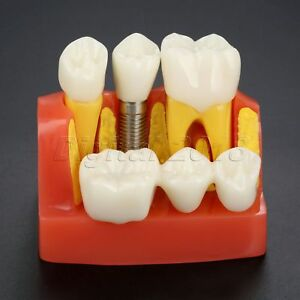 Dental Model Implant Analysis Crown Bridge Demonstration Teeth Model F Education