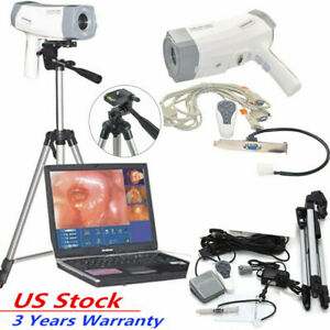 Electronic Colposcope Vaginoscopy Interference 800 000 Pixels Color Digital Ccd