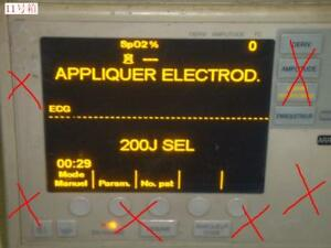 Tested Working Well Used Zoll Patient Monitor M Series Display Module