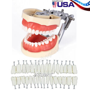 Kilgore Nissin 200 Type Dental Typodont Model Removable Preparation Teeth 32pcs