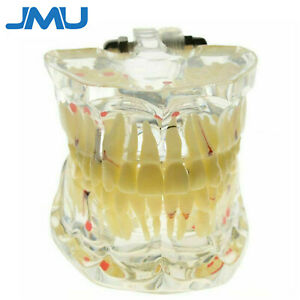 Jmu Dental Lab Study Teeth Model Transparent Adult Pathological Disease Teach