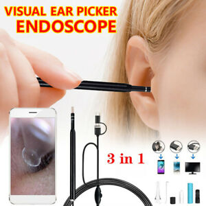 3in15 5mm Ear Cleaning Endoscope Usb Visual Earpick Hd Camera Spoon Otoscope Ger