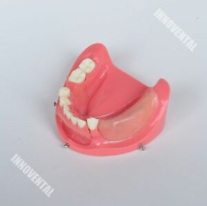 Dental Model 2003 01 Lower Jaw Implant Practice Model replaceable
