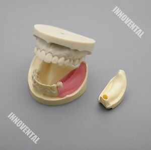 Dental Model 2002 01 Full Implant Practice Model replaceable