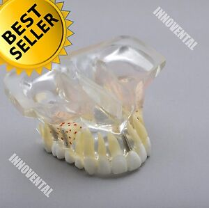 Dental Model 2015 01 Upper Jaw Implant Model With Sinus