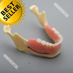 Dental Model 2014 02 Mandible Implant And Overdenture Demo Model yellow