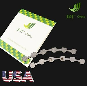 J j Ortho Orthodontic Lingual Retainer 2 Pieces