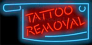 Tattoo Removal Neon Sign 32 X 16 Tattoo Shop Parlor Body Art Jantec Usa
