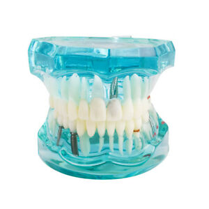 4 Dental Implant Disease Study Teach Adult Pathological Transparent Teeth Model
