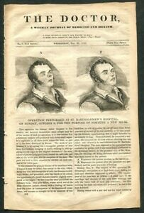 1836 Antique Issue Of The Doctor A Weekly Journal Of Medicine And Health