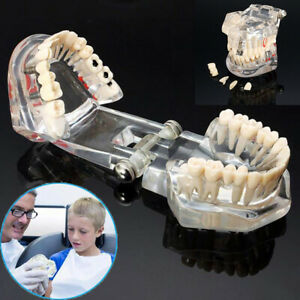 Dental Teeth Teaching Model Study Teach Implant Disease Analysis Removable Tooth