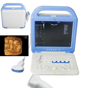 Portable Full Digital Color Doppler Ultrasound Scanner Convex Linear 2 Probe A