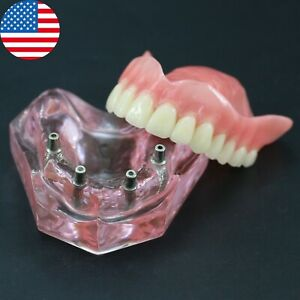 Usa Dental Upper Jaw Teeth Model Typodont Superior Overdenture 4 Implants 6001