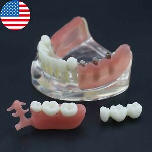 Us Dental Restoration Implant Typodont Lower Jaw Teeth Model Removable Bridge