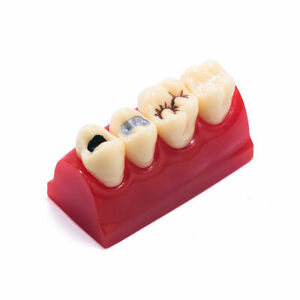 Easyinsmile Dental Cavity Sealing Demonstration Tooth Model Inlay Teeth Model