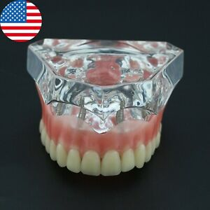 Dental 4 Implants Teeth Model Typodont Superior Overdenture Upper Jaw Clear 6001