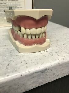 Columbia Dental Typodont Model With Removable Teeth R861