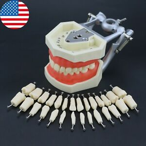 Usa Kilgore Nissin 200 Type Dental Typodont Model Removable 28pcs Screw in Teeth