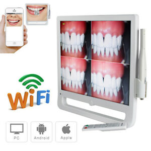 17 Wifi Digital Lcd Aio Monitor Dental Intraoral Camera 1 4 Ccd High Resolution