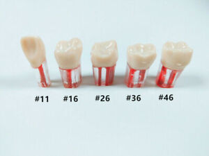 5pcs Dental Clear Root Canal Teeth Study Practice Model For Endodontic Pulp File