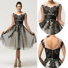 APPLIQUE Gown Evening Bridesmaid Cocktail Short Prom Mothers Wedding Guest Dress