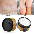 Horse Oil Feet Cream Care for Athlete's Foot Feet Itch Blisters Anti-chapping AQ