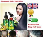 30ml Regrow 7 Days Ginger Germinal Hair Growth Serum Hairdressing Oil Relief