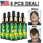 7 Days Hair Growth Essential Oil Loss Natural Ginger Ginseng Regrowth Serum $7.97 USD on eBay