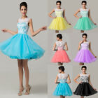 2015 Sweet LACE Bridesmaid Evening Party Quinceanera Homecoming Short Prom Dress