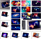 "For Macbook Pro Air 11""13""15""Retina 12""Galaxy Paint Hard Case Laptop Skin+KB"